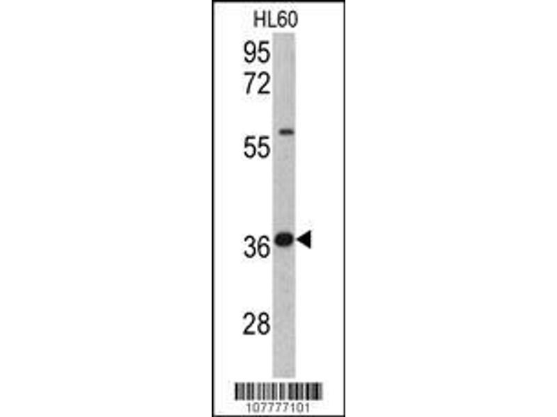 Western Blotting (WB) image for anti-Tumor Protein P53 (TP53) (AA 293-322), (Ser315) antibody (ABIN390204)
