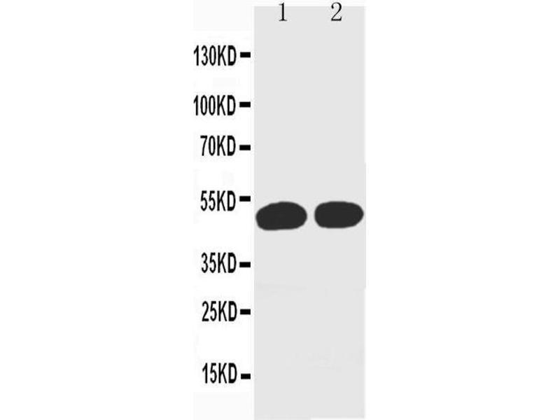 Western Blotting (WB) image for anti-Cyclin A2 (CCNA2) antibody (ABIN3043070)