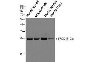 Western Blotting (WB) image for anti-Fas (TNFRSF6)-Associated Via Death Domain (FADD) (pSer194) antibody (ABIN3182514)