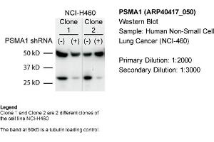 Western Blotting (WB) image for anti-Proteasome (Prosome, Macropain) Subunit, alpha Type, 1 (PSMA1) (C-Term) antibody (ABIN2778810)