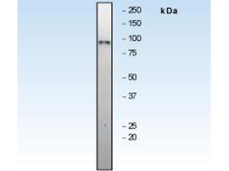Western Blotting (WB) image for anti-RPS6KA1 antibody (Ribosomal Protein S6 Kinase, 90kDa, Polypeptide 1) (N-Term) (ABIN258452)