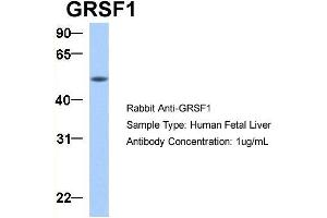 Image no. 5 for anti-G-Rich RNA Sequence Binding Factor 1 (GRSF1) (Middle Region) antibody (ABIN2778788)