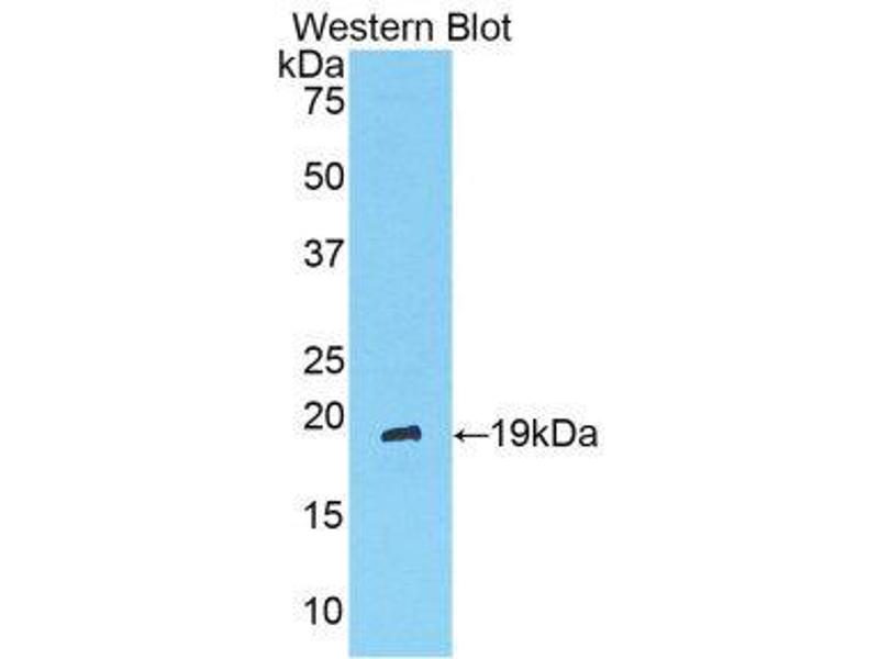 Western Blotting (WB) image for anti-Angiopoietin 1 (ANGPT1) (AA 304-450) antibody (ABIN1857992)