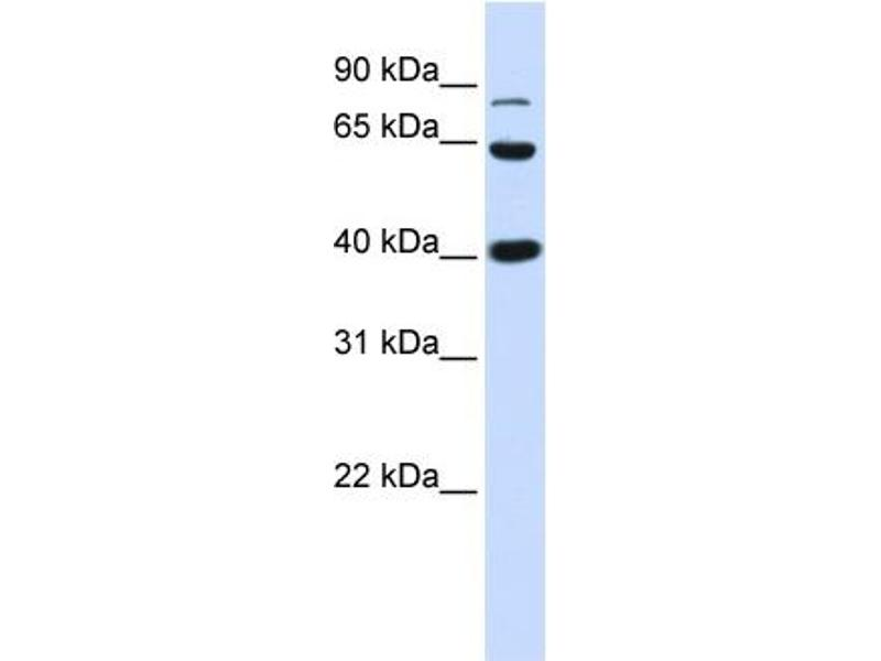 Western Blotting (WB) image for anti-CTNNB1 antibody (Catenin (Cadherin-Associated Protein), beta 1, 88kDa) (Middle Region) (ABIN2792527)