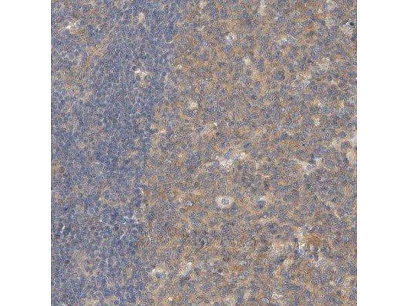 Immunohistochemistry (Paraffin-embedded Sections) (IHC (p)) image for anti-Carboxypeptidase B2 (Plasma) (CPB2) antibody (ABIN4287866)
