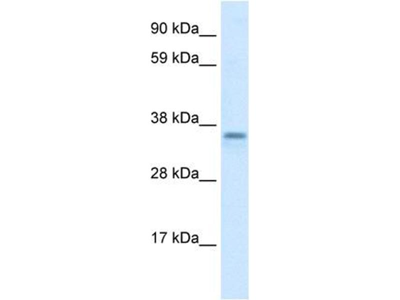Western Blotting (WB) image for anti-Family with Sequence Similarity 164, Member A (FAM164A) (C-Term) antibody (ABIN182657)