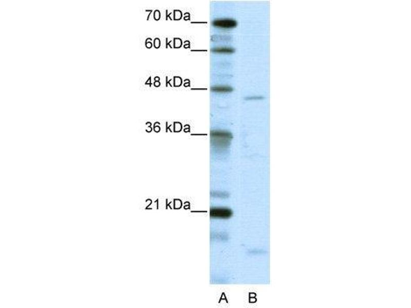 Western Blotting (WB) image for anti-Thyroid Hormone Receptor Interactor 13 (TRIP13) (C-Term) antibody (ABIN183656)