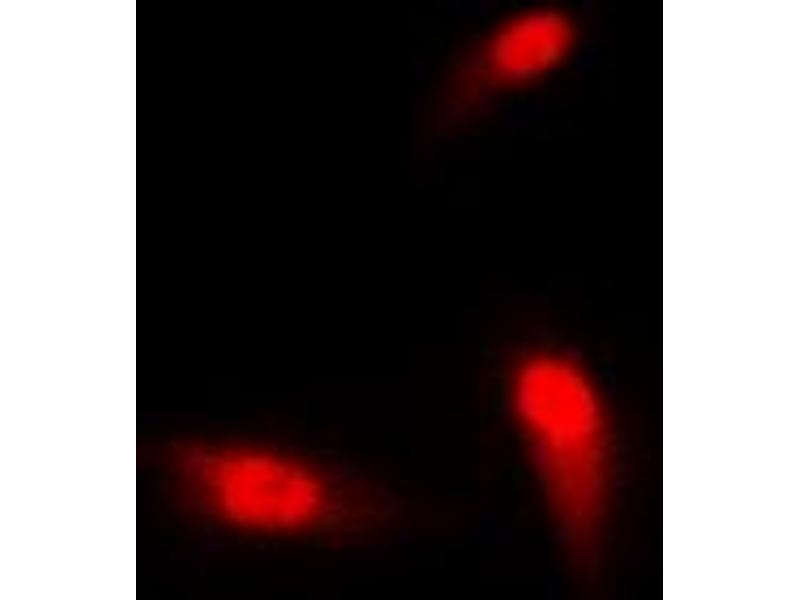 Image no. 1 for anti-SMAD, Mothers Against DPP Homolog 3 (SMAD3) (Center) antibody (ABIN2707071)