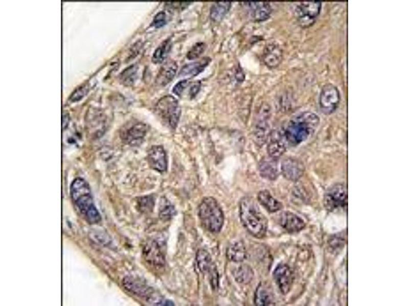 Immunohistochemistry (Paraffin-embedded Sections) (IHC (p)) image for anti-Tyrosyl-tRNA Synthetase (Yars) (C-Term) antibody (ABIN359750)