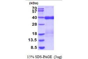 Image no. 1 for Tumor Necrosis Factor Receptor Superfamily, Member 10c, Decoy Without An Intracellular Domain (TNFRSF10C) (AA 26-236) protein (His tag) (ABIN5854192)