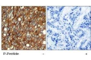 Immunohistochemistry (Paraffin-embedded Sections) (IHC (p)) image for anti-V-Erb-B2 erythroblastic Leukemia Viral Oncogene Homolog 2, Neuro/glioblastoma Derived Oncogene Homolog (Avian) (ERBB2) (pTyr1248) antibody (ABIN4309121)