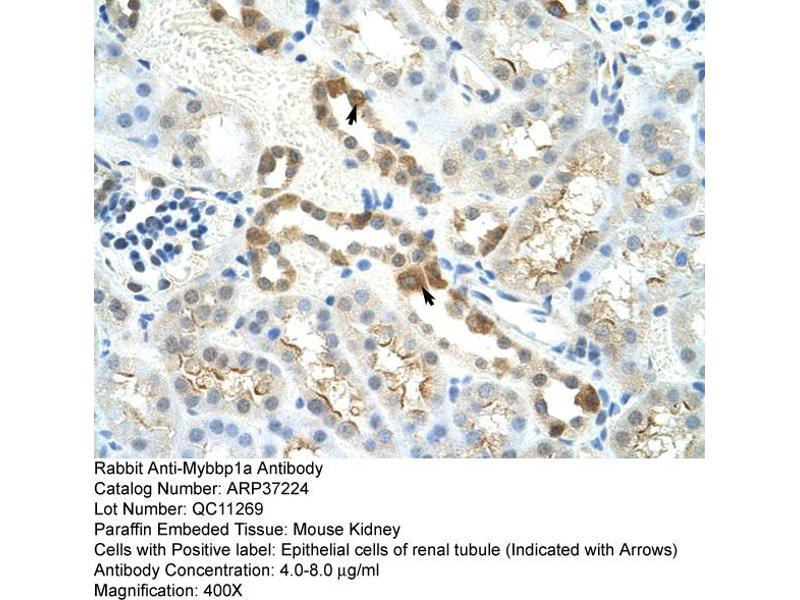 Immunohistochemistry (IHC) image for anti-Myb-Binding Protein 1A (MYBBP1A) (C-Term) antibody (ABIN2780004)