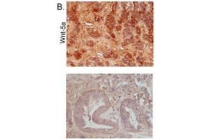 Immunohistochemistry (Paraffin-embedded Sections) (IHC (p)) image for anti-WNT5A antibody (Wingless-Type MMTV Integration Site Family, Member 5A) (AA 330-380) (ABIN675758)