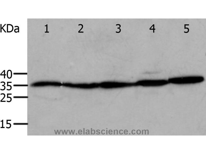 Western Blotting (WB) image for anti-Annexin V antibody (Annexin A5) (ABIN2420983)