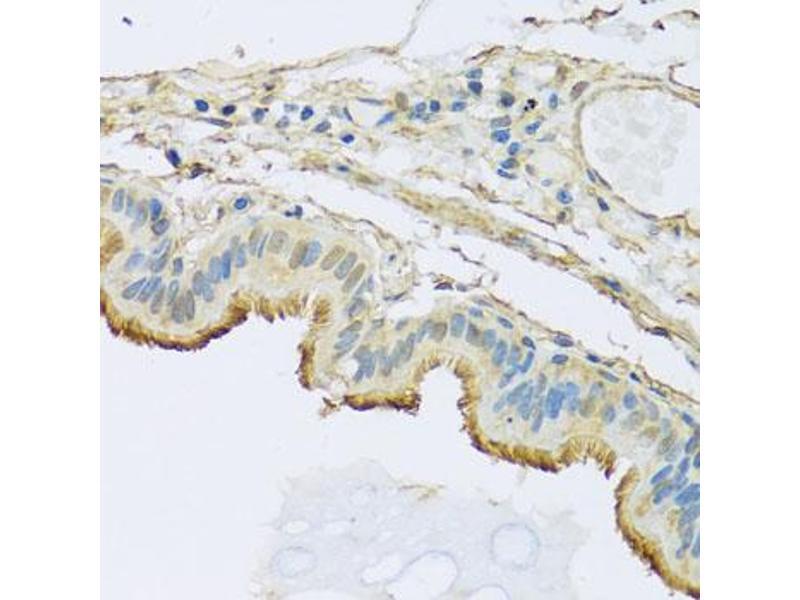 Image no. 2 for anti-NADH Dehydrogenase (Ubiquinone) 1 beta Subcomplex, 5, 16kDa (NDUFB5) antibody (ABIN6568461)
