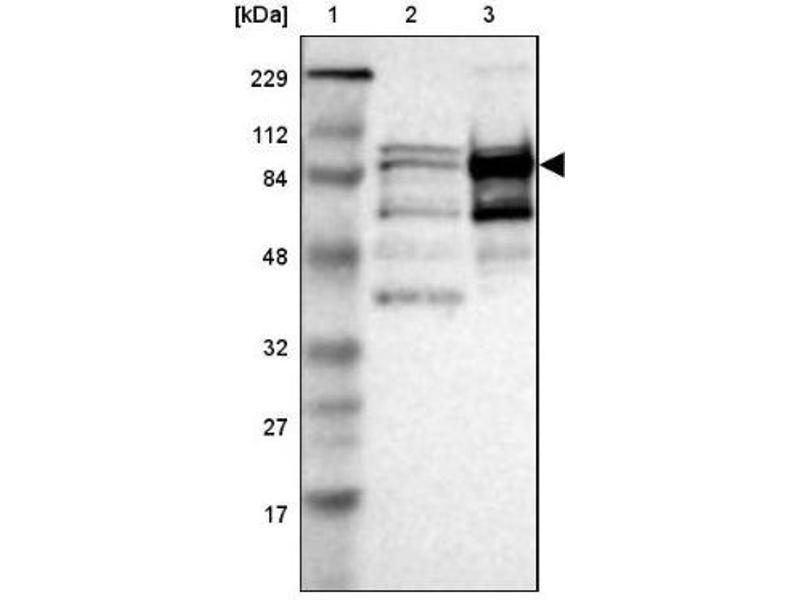 Western Blotting (WB) image for anti-KIF2C antibody (Kinesin Family Member 2C) (ABIN4328841)