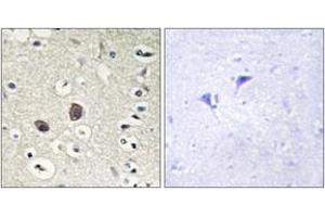 Immunohistochemistry (IHC) image for anti-TEK antibody (TEK Tyrosine Kinase, Endothelial) (ABIN1532488)