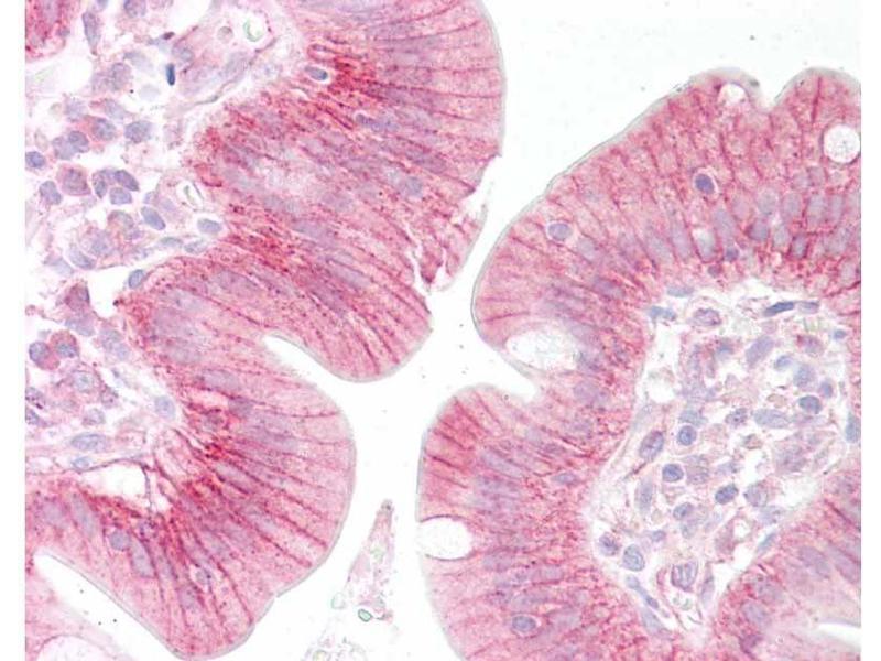 Immunohistochemistry (IHC) image for anti-Catenin, beta (C-Term) antibody (ABIN1043906)