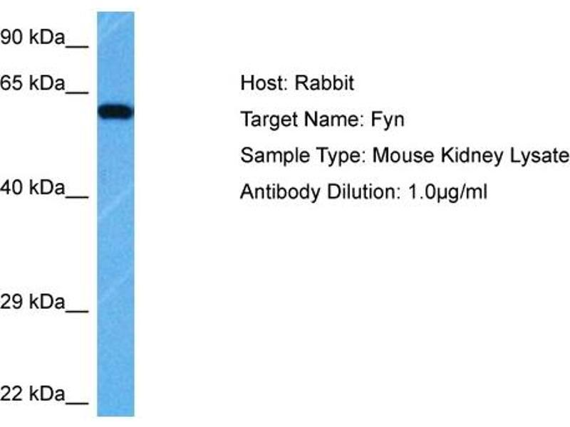 Western Blotting (WB) image for anti-FYN antibody (FYN Oncogene Related To SRC, FGR, YES) (Middle Region) (ABIN2786269)