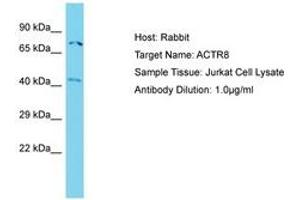 Image no. 1 for anti-ARP8 Actin-Related Protein 8 Homolog (Yeast) (ACTR8) (N-Term) antibody (ABIN6750738)