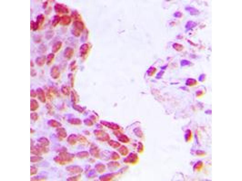 Immunohistochemistry (IHC) image for anti-Aryl Hydrocarbon Receptor Nuclear Translocator (ARNT) (N-Term) antibody (ABIN2707549)