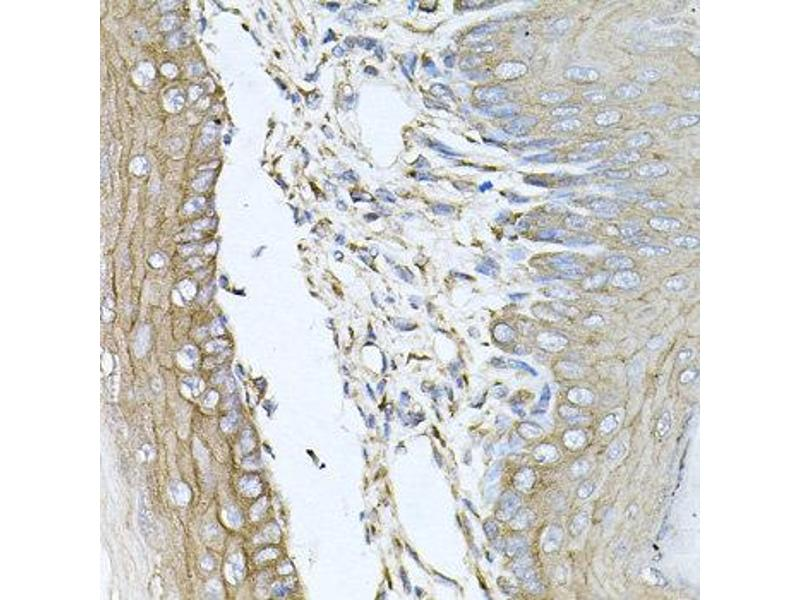 Image no. 2 for anti-Calumenin (CALU) antibody (ABIN2561545)