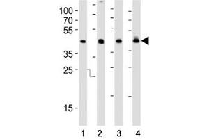 Image no. 6 for anti-Isocitrate Dehydrogenase 1 (NADP+), Soluble (IDH1) (AA 116-143) antibody (ABIN3031506)