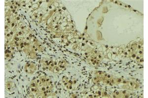 Image no. 2 for anti-Mitogen-Activated Protein Kinase Associated Protein 1 (MAPKAP1) (pThr86) antibody (ABIN6255748)