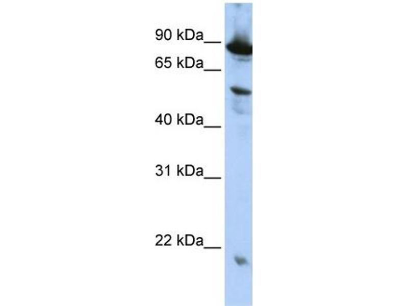 Western Blotting (WB) image for anti-Zinc Finger, CCCH-Type with G Patch Domain (ZGPAT) (N-Term) antibody (ABIN2775532)