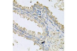 Image no. 2 for anti-Peptidylprolyl Isomerase C (Cyclophilin C) (PPIC) antibody (ABIN6146023)