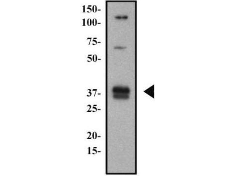 Image no. 2 for anti-HLA-DR-gamma (CD74) (AA 12-27) antibody (ABIN151486)