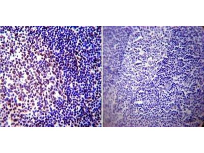 Immunohistochemistry (Paraffin-embedded Sections) (IHC (p)) image for anti-CREB1 antibody (CAMP Responsive Element Binding Protein 1) (ABIN261497)