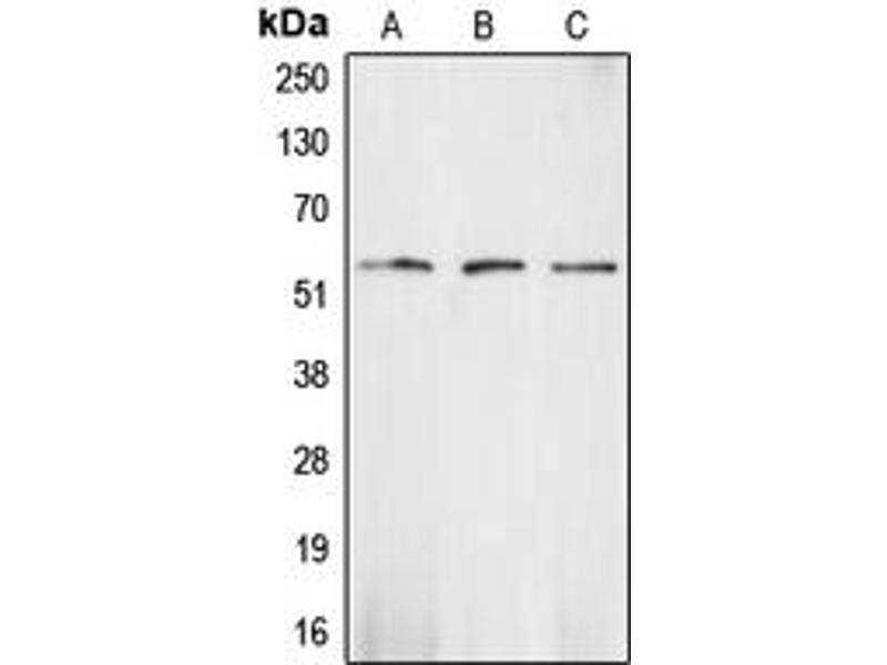 Western Blotting (WB) image for anti-CHEK1 antibody (Checkpoint Kinase 1) (Center) (ABIN2705867)