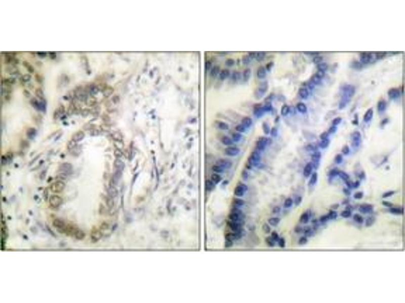 Immunohistochemistry (IHC) image for anti-CCAAT/enhancer Binding Protein (C/EBP), alpha (CEBPA) (AA 6-55), (pSer21) antibody (ABIN1531212)