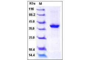 Image no. 1 for S100 Calcium Binding Protein A2 (S100A2) (AA 2-98) protein (Fc Tag) (ABIN2002264)
