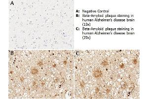 Immunohistochemistry (IHC) image for anti-Amyloid beta (Abeta) (N-Term) antibody (ABIN95037)