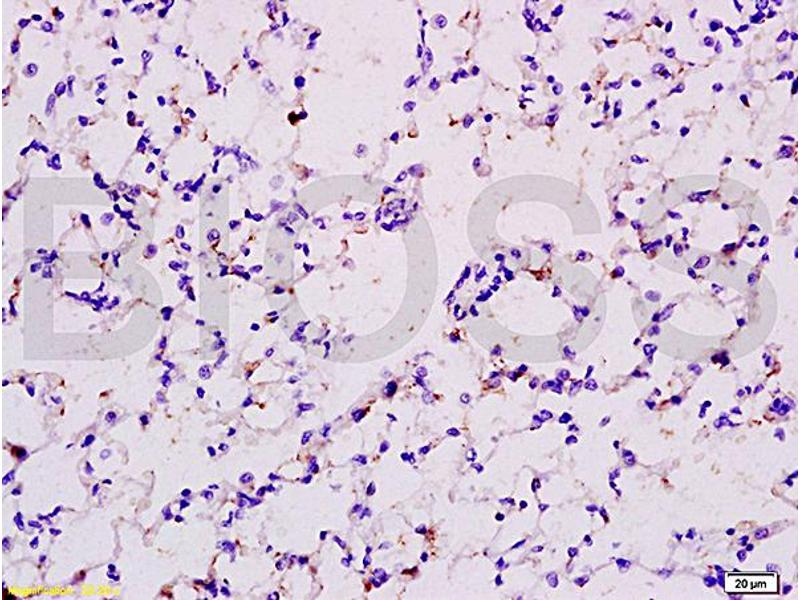 Immunohistochemistry (IHC) image for anti-EPOR antibody (Erythropoietin Receptor) (AA 330-380) (ABIN686347)