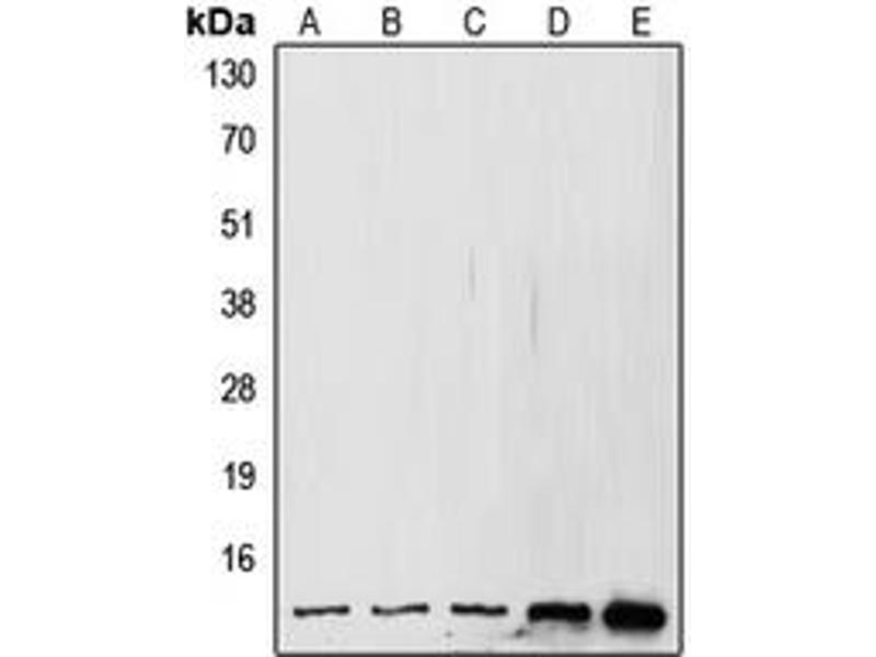 Western Blotting (WB) image for anti-SMT3 Suppressor of Mif Two 3 Homolog 1 (S. Cerevisiae) (SUMO1) (N-Term) antibody (ABIN2707750)