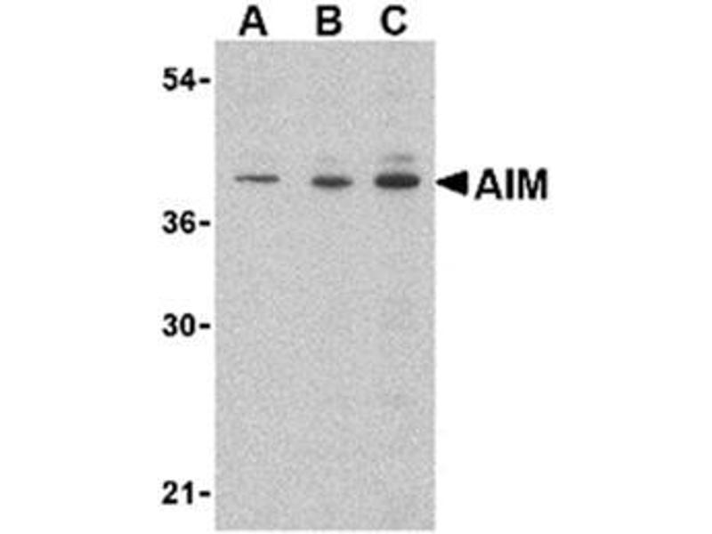 image for anti-CD5L antibody (CD5 Molecule-Like) (C-Term) (ABIN318735)