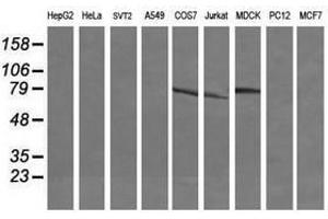 Image no. 5 for anti-Differentially Expressed in FDCP 6 Homolog (Mouse) (DEF6) antibody (ABIN1497809)