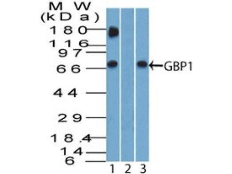 Western Blotting (WB) image for anti-Guanylate Binding Protein 1, Interferon-Inducible (GBP1) antibody (ABIN4313700)
