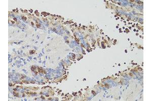 Image no. 3 for anti-Programmed Cell Death 1 (PDCD1) antibody (ABIN6290170)