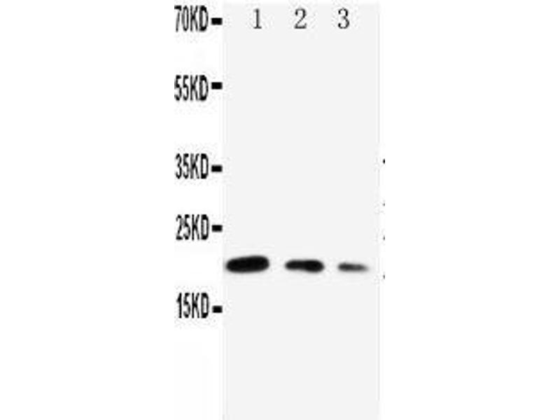 Western Blotting (WB) image for anti-Cell Division Cycle 42 (GTP Binding Protein, 25kDa) (CDC42) (AA 121-138), (Middle Region) antibody (ABIN3044385)