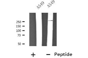Image no. 1 for anti-Calcium Channel, Voltage-Dependent, T Type, alpha 1H Subunit (CACNA1H) antibody (ABIN6258628)
