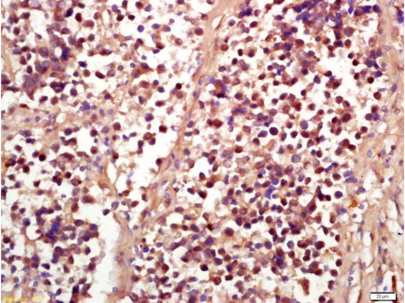 Immunohistochemistry (IHC) image for anti-RPS6KA3 antibody (Ribosomal Protein S6 Kinase, 90kDa, Polypeptide 3) (AA 210-260) (ABIN745268)