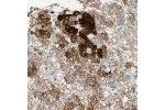 Immunohistochemistry (Paraffin-embedded Sections) (IHC (p)) image for anti-Farnesyl-Diphosphate Farnesyltransferase 1 (FDFT1) antibody (ABIN4311300)