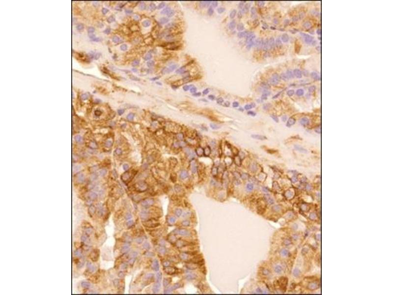Immunohistochemistry (Paraffin-embedded Sections) (IHC (p)) image for anti-alpha Tubulin (TUBA1) antibody (ABIN152113)