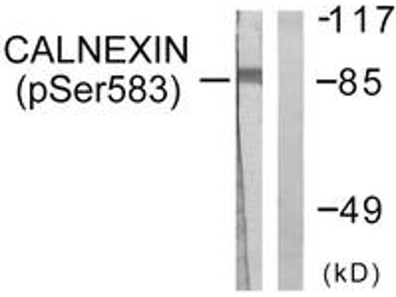 Western Blotting (WB) image for anti-Calnexin (CANX) (AA 543-592), (pSer583) antibody (ABIN1531305)