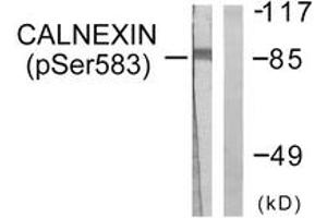 Western Blotting (WB) image for anti-Calnexin antibody (CANX) (pSer583) (ABIN1531305)