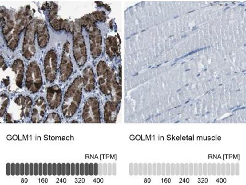 Immunohistochemistry (Paraffin-embedded Sections) (IHC (p)) image for anti-Golgi Membrane Protein 1 (GOLM1) antibody (ABIN4315385)